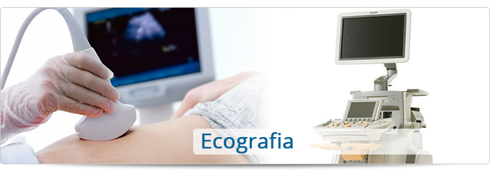 Ecocardiogramma color doppler